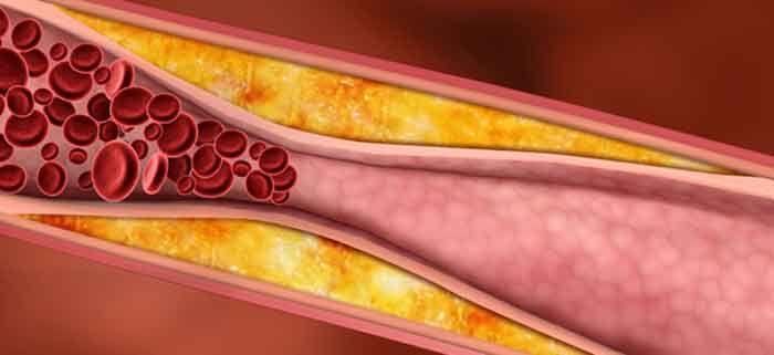 Triglicéridos - É um tipo de gordura encontrado no sangue, produto do desdobramento do açúcar que contribui para a formação da placa de gordura nas paredes das artérias. Deve ter cuidado com a alimentação, diminuindo as massas, os açucares e o álcool. Receita caseira de agrião para diminuir os triglicéridos. 4 talos de agrião, 1 copo de sumo de laranja. Coloque os talos de agrião e o sumo de laranja a liquidificar. Tomar um copo de manha e outro a noite, durante 15 dias.