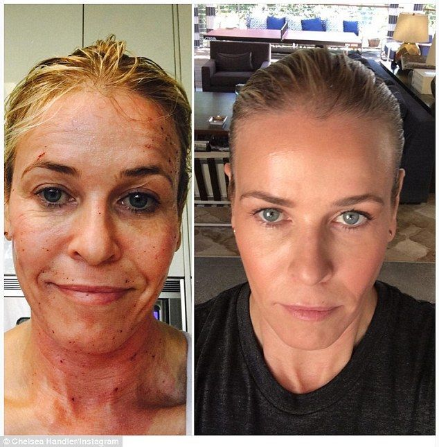 Chelsea Handler shared an incredible before/after selfie following a ProFractional laser treatment on her face