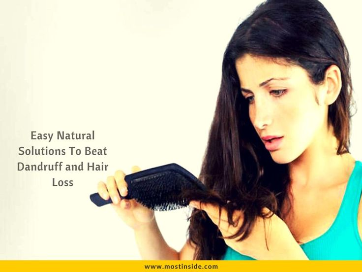 Easy Natural Solutions To Beat Dandruff and Hair Loss