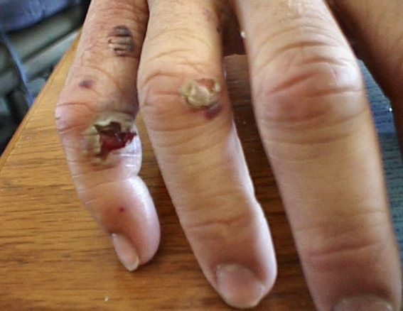43 Best Broken Finger Images On Pinterest  Body Parts -3151