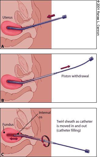 Misoprostol | Endometrial Biopsy - American Family Physician