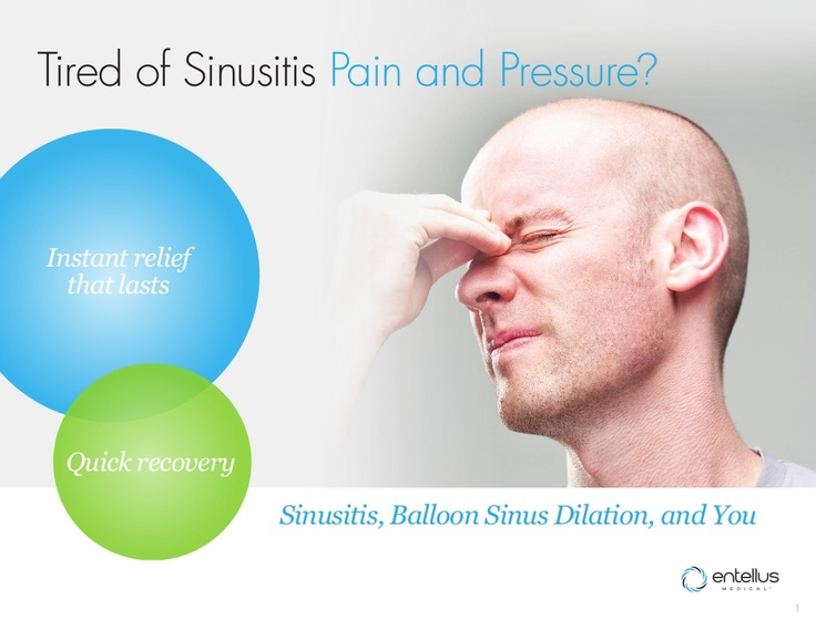 Balloon Sinus Dilation Flipbook. Everything you need to know about sinus surgery.