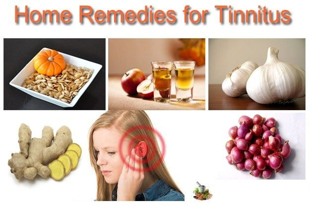 Home Remedies For Ringing In The Ears Home Remedies Remedies Tinnitus Cure