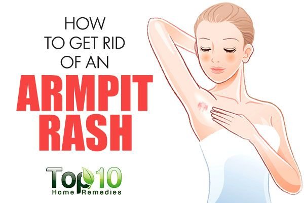 Due to being a dark, sweaty area and prone to irritation and friction, armpits are particularly vulnerable to rashes. A rash in this sensitive skin area can be really irritating as well as unbearable. Common symptoms of an armpit rash include itching, small bumps on the skin, redness or darkening of the skin, flakiness, pain …