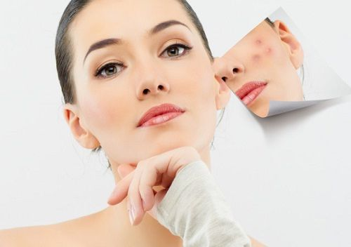 5 Homemade face packs to remove pimple marks, acne scars with some natural remedies that will lighten the pimple marks, fade the scars, even out the skin.