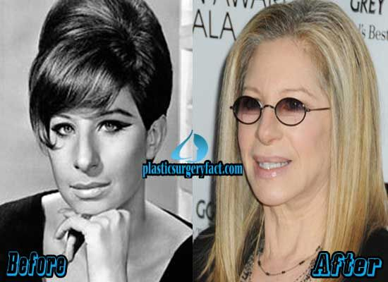 Barbra Streisand Nose Job Before and After | plasticsurgeryfac...