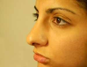 Correcting a Bulbous Tip: A Story of Before and After Rhinoplasty