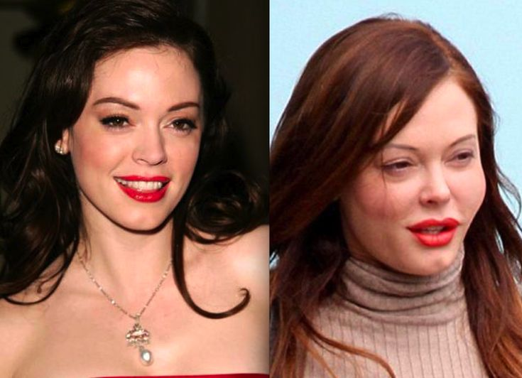 False Switches Idone her hair before=Rose McGowan before and after plastic surgery.