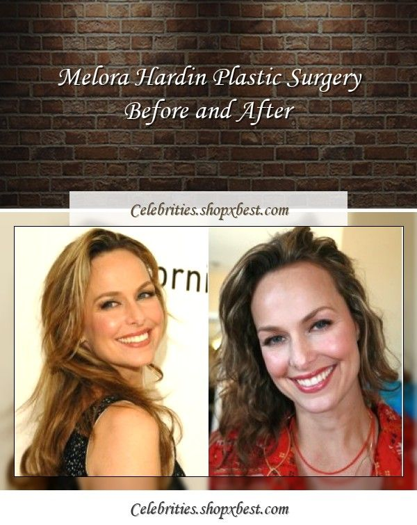 Melora Hardin Plastic Surgery Before And After Plastic Surgery Melora Hardin Celebrity Surgery