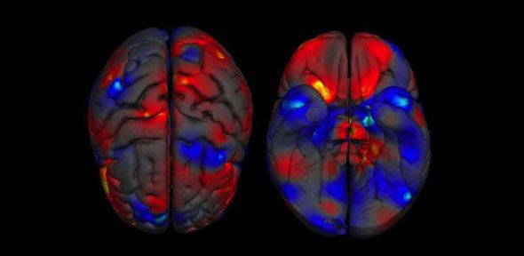 """New study examines thousands of brains from 2 decades of research to reveal differences between male & female brain structure.  """"It is important to note that we only investigated sex differences in brain structure, so ...cannot infer anything about how this relates to behaviour or brain function.""""  """"Although these ...clear sex differences in brain structure may reflect an environmental or social factor, from other studies we know that biological influences are also important."""""""