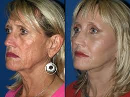 Cheek augmentation implants and surgery performed by los angeles area cosmetic surgeon from epionebh. Cheek implants will give your face a fuller look. Different styles your face and we provide affordable prices.