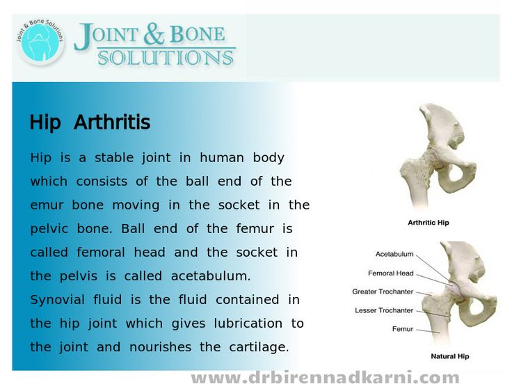 Hip is a stable joint in human body which consists of the ball end of the femur bone moving in the socket in the pelvic bone. Ball end of the femur is called femoral head and the socket in the pelvis is called acetabulum. Synovial fluid is the fluid contained in the hip joint which gives lubrication to the joint and nourishes the cartilage.