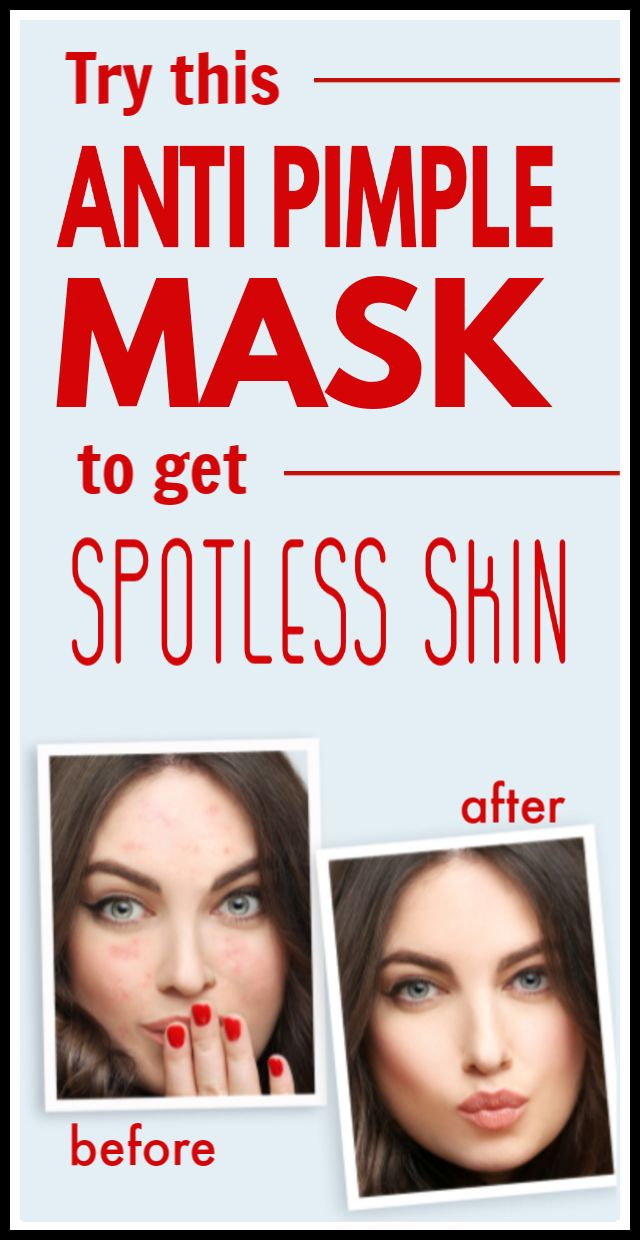 Use this anti pimple mask times a week to get perfect 100% spotless skin tone in just 7 days