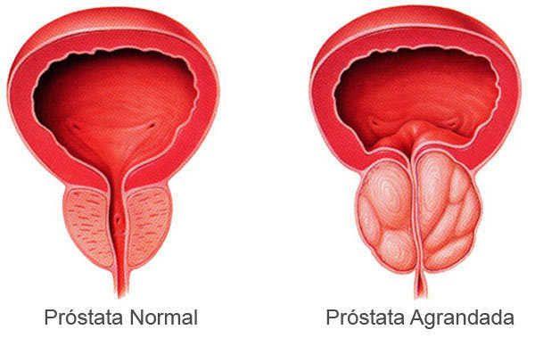 La próstata inflamada o prostatitis es una condición que genera muchas molestias y dolor en el paciente, que puede ver su calidad de vida