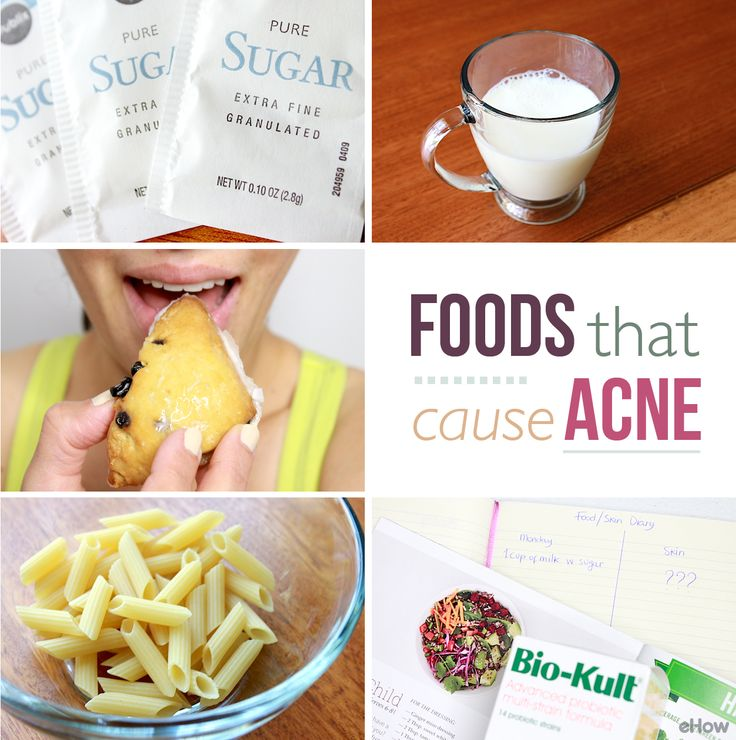 Types of food that cause acne plays foods to avoid and keys for Cuisine for a cause