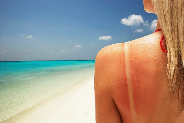 How to Heal a Sunburn Overnight