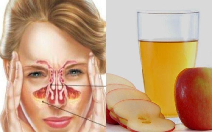 6 τρόποι να αντιμετωπίσετε την ιγμορίτιδα με μηλόξυδο Έχει αντιβακτηριδιακές και αντιμυκητιακές ιδιότητες, Αραιώνει τη βλέννα, Καθαρίζει τις ρινικές κοιλότη