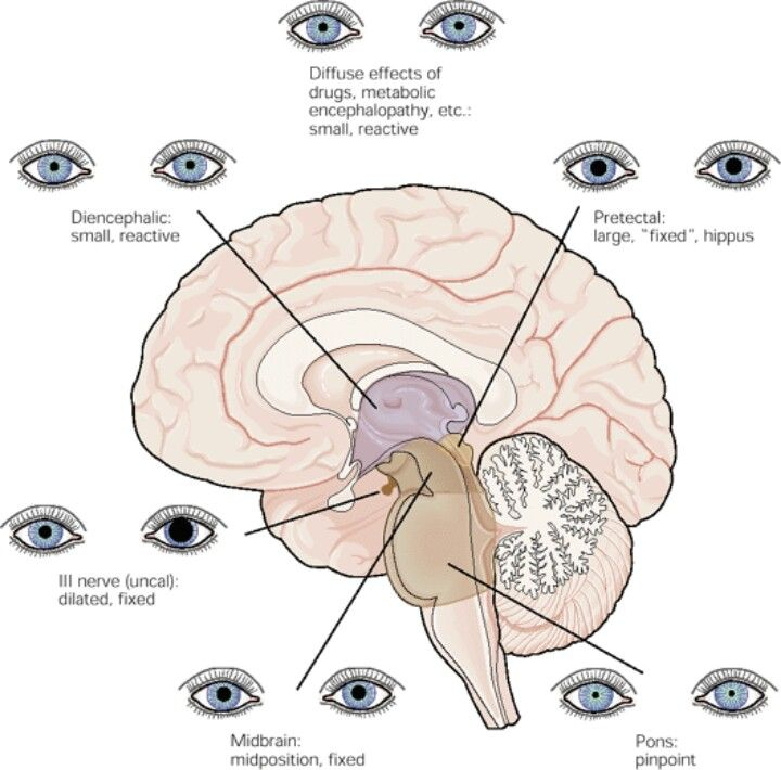 128 best Neurology - Cranial Nerves images on Pinterest | Nervous ...