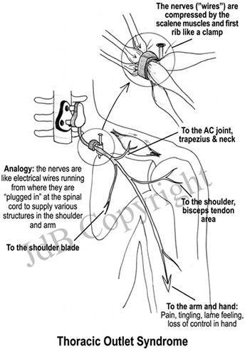 best 25  neck muscle anatomy ideas on pinterest