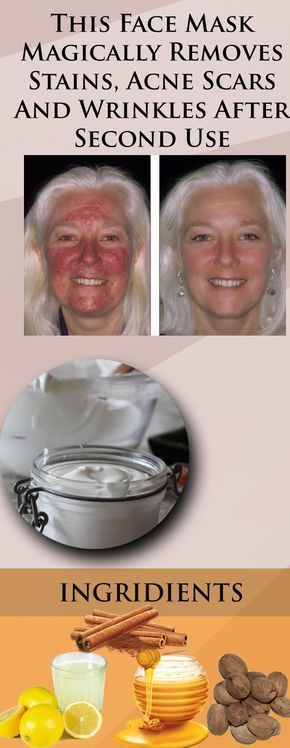 This Face Mask Magically Removes Stains, Acne Scars And Wrinkles After Second Use – Get Fit