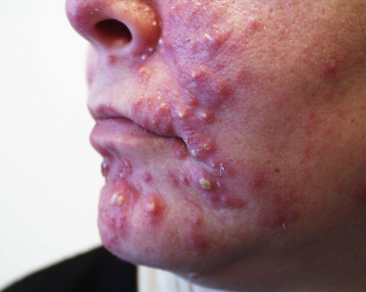 Have you ever wondered why you are still dealing with acne and your are an adult now?