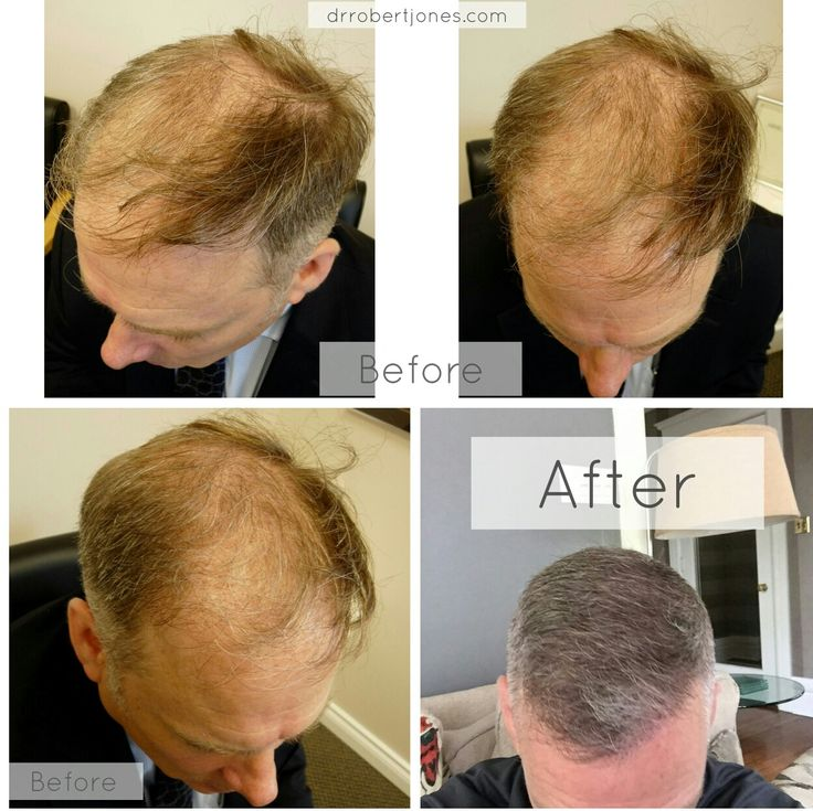"This patient had three x 3000 graft fue procedures done by Canadian hair transplant doctor Dr. Robert Jones at his Toronto hair transplant clinic - in his review the patient said, ""it honestly looks like it did when I was 25, my barber is using thinning shears on the top of my head""  Another successful hair transplant  Before and after photos taken by Dr. Robert Jones"