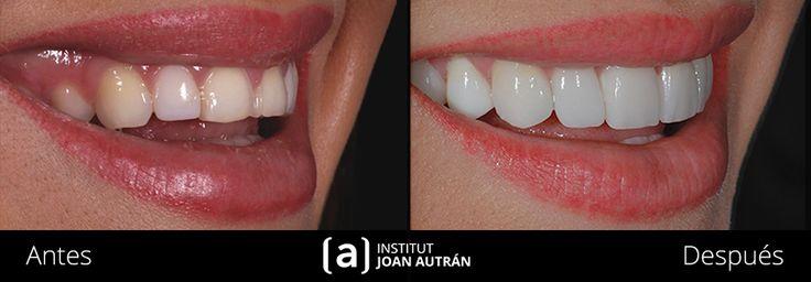 Como tratar casos de carillas sin tallado con la estetica dental. Imágenes, videos, el antes y después. Confía en especialistas del institut Joan Autrán.