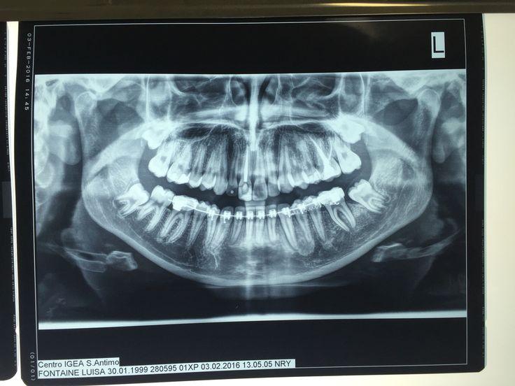 Orto post dopo estrazione di 36 e medicalizzazione di 37 con minivite ortodontica tra 3.3 e 3.4