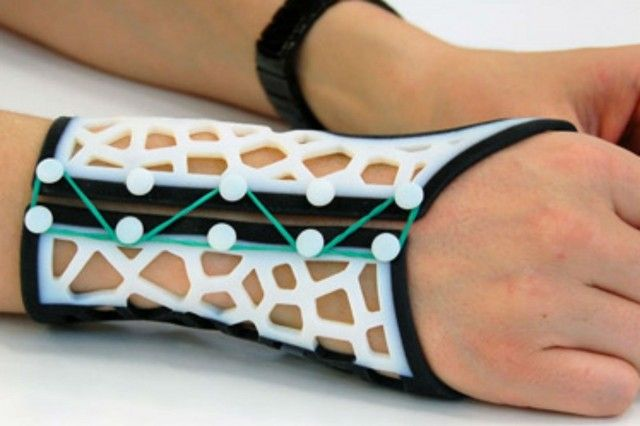 New software could create better looking, cheaper-to-produce splints for all.