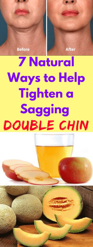 7 Natural ways to help tighten a sagging double chin - Workout Hit