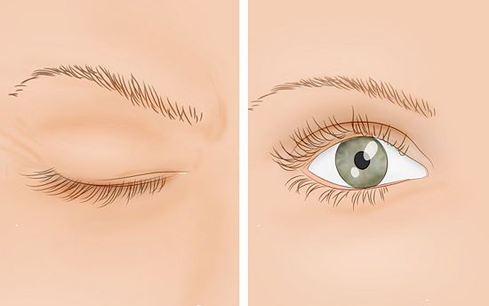 How to Stop Eye Twitching: 7 steps (with pictures) - wikiHow... My eyes have been twitching for several weeks and it was very annoying...this works! Make sure you have your ice ready! Ahh...