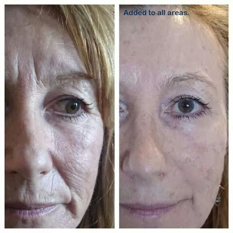 2 minute miracle with Instantly Ageless. It has to be seen to be believed! Non invasive, lasting 8-10 hours. The perfect answer if you want a wrinkle free face without needles. I am an official supplier, so contact me at vitality365@yahoo.com to order yours.