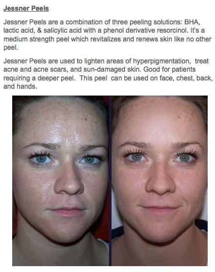 See The #Results For Your Self - Jessner's Peel #OfficePeel