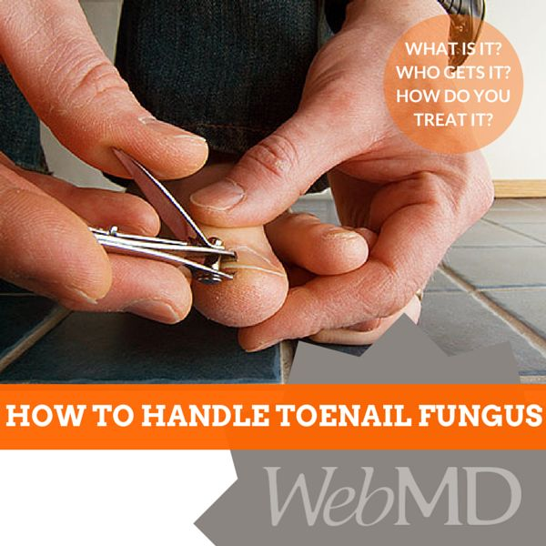 http://www.webmd.com/skin-problems-and-treatments/ss/slideshow-toenail-fungus?ecd=soc_pin_042815_ss_toenailfungus Toenail #fungus is an #infection that gets in through cracks in your #nail or cuts in your skin. It can make your #toenail change color or get thicker. It can also hurt. Left untreated, an infection could spread to other toenails, skin, or even your fingernails.