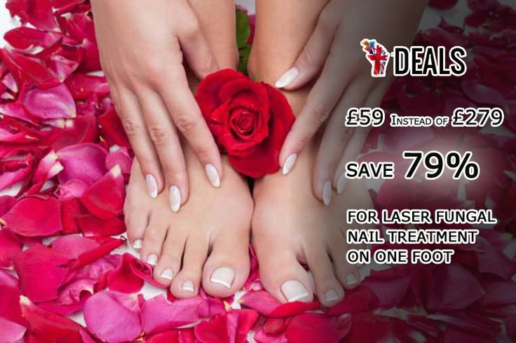 £59 INSTEAD OF £279 FOR #LASER #FUNGAL #NAIL TREATMENT ON ONE #FOOT, £99 FOR BOTH #FEET AT SMOOTH'D - CHOOSE FROM EIGHT UK LOCATIONS AND #SAVE UP TO 79% http://www.grabdeals.today/uk-en/deal_detail/78196