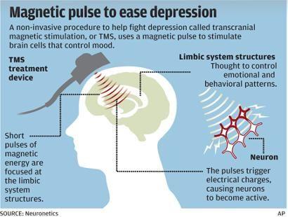 transcranial magnetic stimulation | Transcranial magnetic stimulation (TMS) therapy uses short pulses of ...