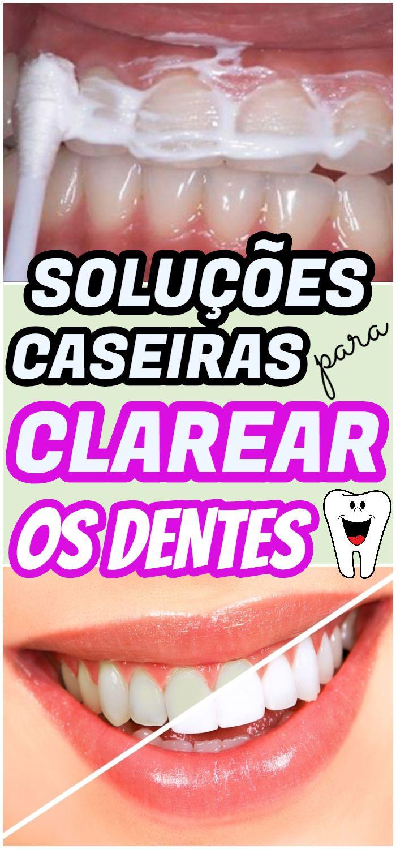 Solucao Caseira Para Clarear Os Dentes Clarear Dentes Escovar