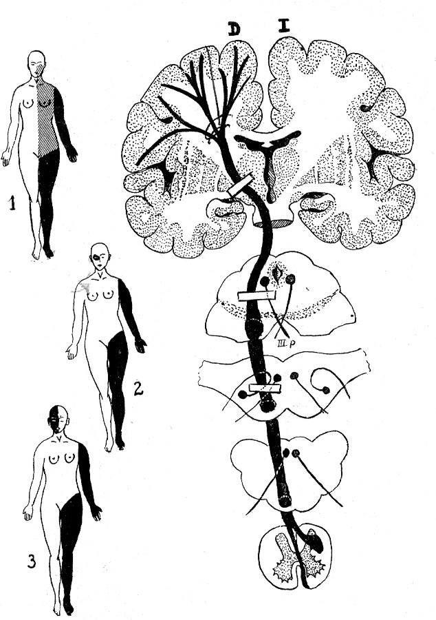 2) La mayoría de las parálisis se deben a derrames o lesiones, como las lesiones de la médula espinal o una fractura en el cuello. Otras causas de parálisis incluyen: Enfermedades nerviosas, tales como la esclerosis lateral amiotrófica Enfermedades autoinmunes, como el síndrome de Guillain-Barré Parálisis de Bell, que afecta los músculos de la cara. La polio (poliomielitis) solía ser una causa de parálisis.
