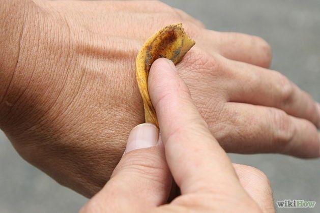 Výborně odpuzují hmyz. Při bodnutí hmyzem příjemně uklidní svědící pokožku. Pokud banánové slupky rozházíte na záhoncích, zbaví vás slimáků a dalších podobných škůdců.  Výborně se s nimi dá vyleštit stříbro, které znovu získá ztracený lesk.