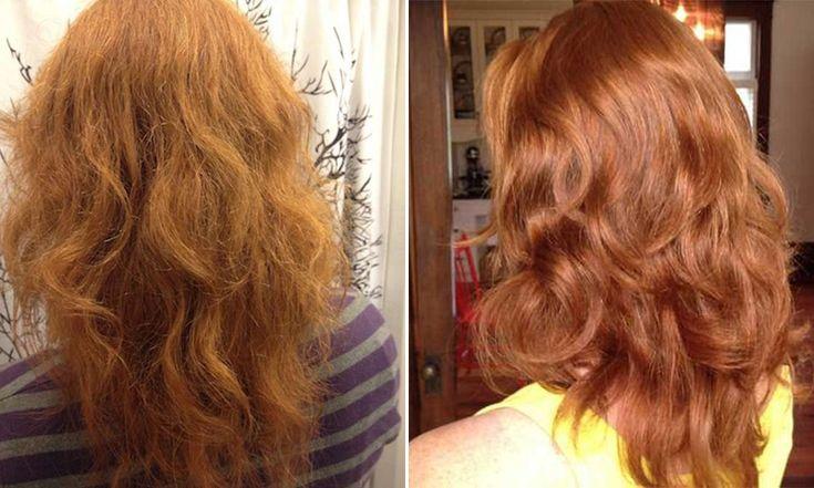 Frau Shampoo Austausch durch Mischen von Essig und Backpulver und Ergebnis ist erstaunlich Die Frau nur verwendet, Apfelessig und Backpulver, um das Haar in Abständen von 4-5 Tagen zu waschen.