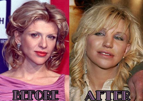 Courtney Love Plastic Surgery Before And After She Really