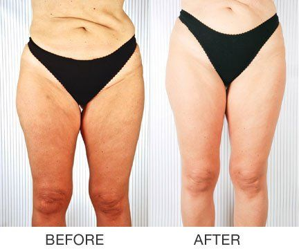 7066 best cellulite images on pinterest anti cellulite cellulite treatment and exercise workouts. Black Bedroom Furniture Sets. Home Design Ideas