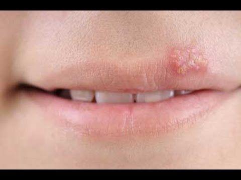 Herpes Labial Remedios Caseros, Cura Para Herpes, Herpes Labial Remedio, Herpes Bucal Causas.  http://como-curar-el-herpes.good-info.co   Tratamiento del Herpes Genital   El herpes genital es una enfermedad de transmisión sexual causada por los virus del herpes simple (HSV) tipo 1 y tipo 2. Herpes genital es causado más por el VHS tipo 2. La mayoría de las personas no presentan síntomas mínimos o de HSV-1 o HSV-2.   Cuando los síntomas ocurren, por lo general