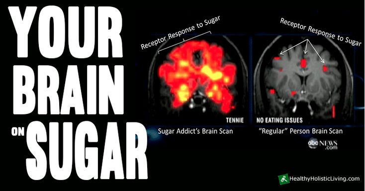 "What Does Sugar Do to Your Brain?  While all cells in your body can use glucose for energy, when you burn fat as your primary fuel your liver produces ketones that burn far ""cleaner"" in that they generate fewer reactive oxygen species (ROS) and secondary free radicals than sugars. #sugar #health #diet #food"