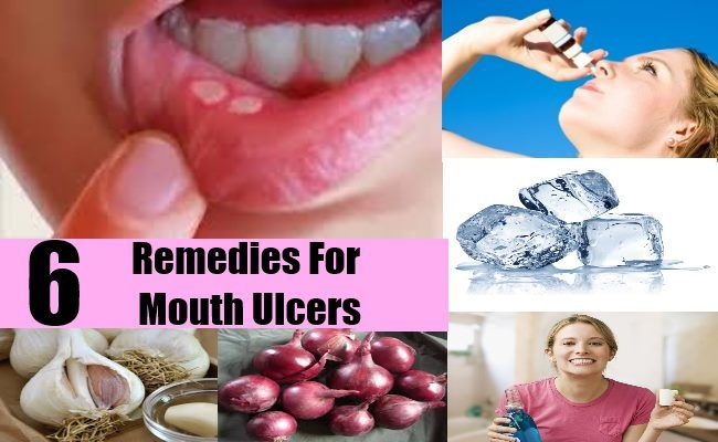 Remedies For Mouth Ulcers