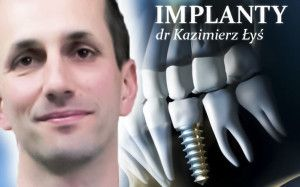 #implanty - dr Kazimierz #Łyś o leczeniu,wszczepianiu, trwałości #implantów
