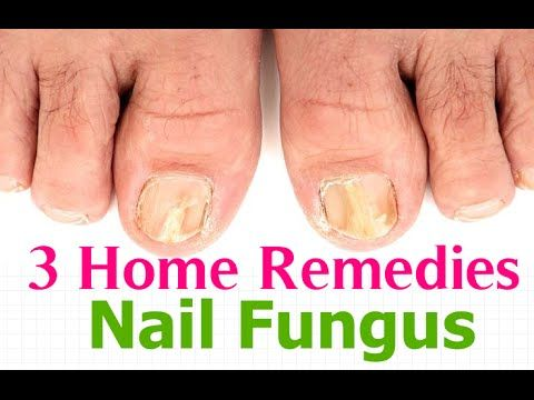 Best 25+ Toenail fungus remedies ideas on Pinterest | Toenail ...