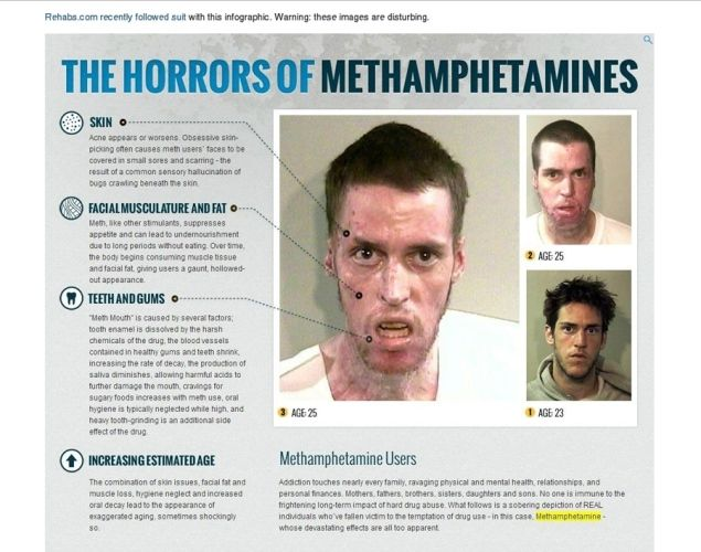 """the effects of methamphetamine abuse beyond Effects of methamphetamine  """" neurologic manifestations of chronic methamphetamine abuse  the neurotransmitter instability extends beyond dopamine, as the ."""