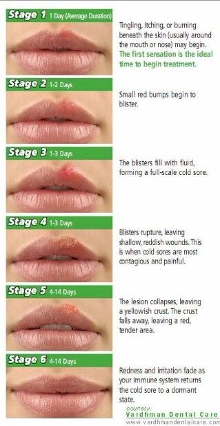 Cold sore stages