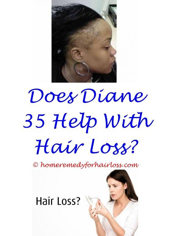 17 best Vitamin D Hair Loss images on Pinterest